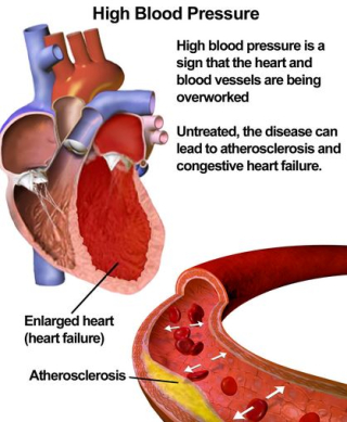 Atherosclerosis, esc, rome, 2016, icd, treatment,
