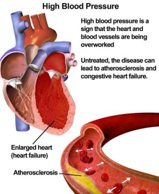 Atherosclerosis, esc, rome, 2016, icd, treatment,