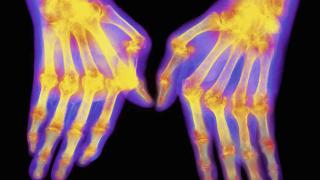 Img1024-700_dettaglio2_Artrite-reumatoide-tipsimages