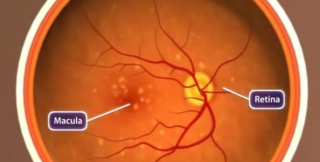 Macula  retina  eyes  nih  diet  macular degeneration