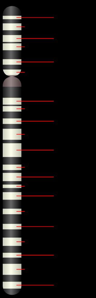 ATROFIA MUSCOLARE SPINALE  sma  cromosoma 5  biogen  nusinersen