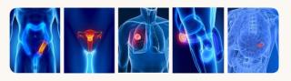 Sced, tumore, biopsia, liquida, gene, diagnosi,