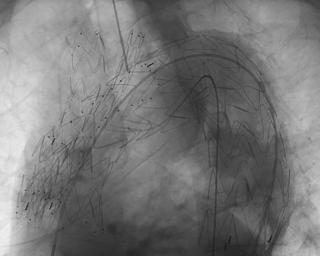 Scheletro  endoprotesi  intervento  torino  mauriziano  stampa  3d