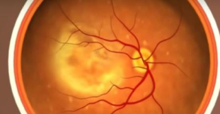 Nih  eyes  amd  Age-Related Macular  Degeneration