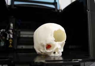 Carfagni  meyer  nervo ottico  cervello  firenze  tac  cervello  intervento  cancro  tumore  T3DDY