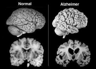 Doenca-de-Alzheimer-Imagem-Edicao-MN-630x452