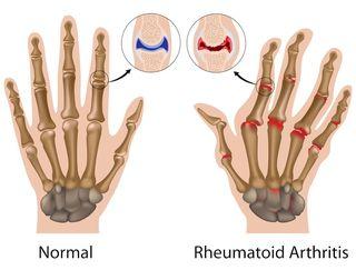 Artrite-reumatoide-sintomi