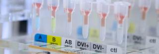 Dono  pasqua  svizzera  trasfusione  sangue  lugano