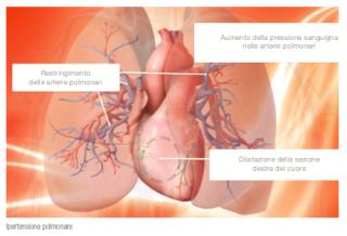 Ipertensione polmonare  msd