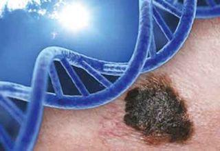 Melanomoa_DNA_UV