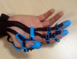 Robotica  sant'anna  movimento  riabilitazione  tecip  careggi