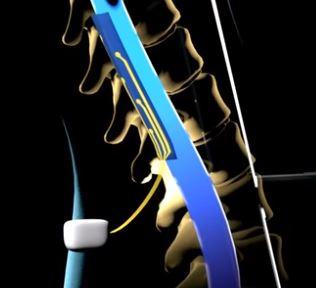 Stimo  chuv  losanna  epfl  stimolazione  camminare  paralisi  movimento