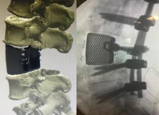 Protesi  3d  vertebra  pisa  capanna  intervento  ricostruzione  stampa  titanio  tac