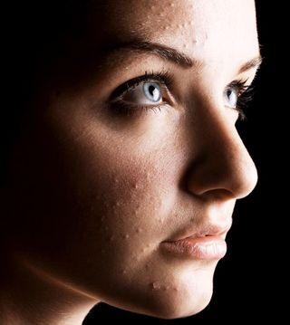 Acne galderma di pietro terapia pelle viso