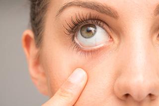 180507 dry eye
