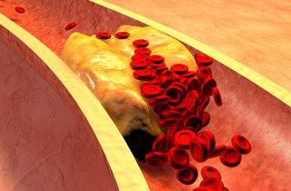 Colesterolo vasi