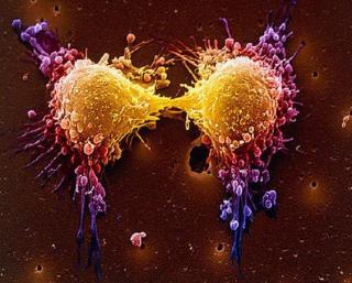 Tumore cellule