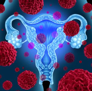 Tumore ovaio cancro