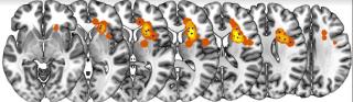 Puglisi  howells  cervello  studio  ricerca  fibre nervose  brain  cerri