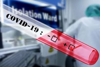 Test  sangue  igm  igg  anticorpi  covid-19  coronavirus  sars-cov-2  diagnosi  oms  cts  ministero