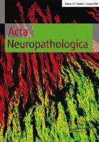 Acta Neuropathologica  sma  ricerca  sla  sut13  motoneuroni  neurodegenerazione  neuroni oculomotori