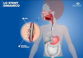 Bambino  gesu'  stent  esofago  sidam  stenosi  restringimento  lesione  intervento  dall'oglio