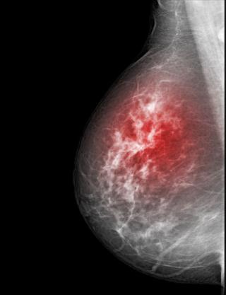 Rx seno tumore