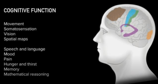 Cervello  musk  chip  computer  robot  connessione