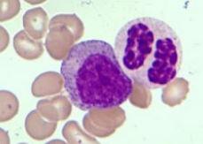 Leucemia Mieloide Cronica AtipicaLMCa