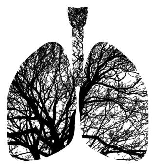 Polmone  astrazeneca  asco  2020  tumore  cancro  studio  caspian  sopravivvenza  sclc  durvalumab  trattamento.