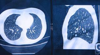 Audelan  ers  congresso  2021  tumore  cancro  polmone  intelligenza artificiale  nizza  Joanna Chorostowska-Wynimko