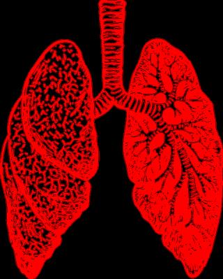 Polmoni  tumore  cancro