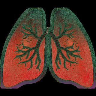 Lung  polmoni  cancro  albero  terapia