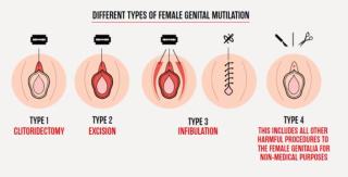 Nathalie Rickli  mutilazione  genitali  donne  bambine  svizzera  legge  prevenzione  dati  numeri