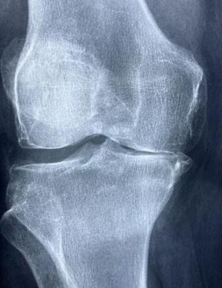 Torre  iss  protesi  artroprotesi  interventi  dati  italia  regioni  terapia  covid-19  coronavirus  lockdown  riap  anca  ginocchio